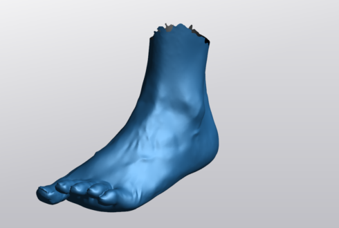 Prosthetic/Orthotic Scanning Service